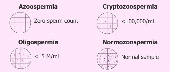 What is azoospermia. Definition and understanding