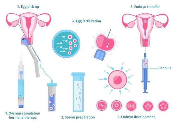 Step by step IVF procedure
