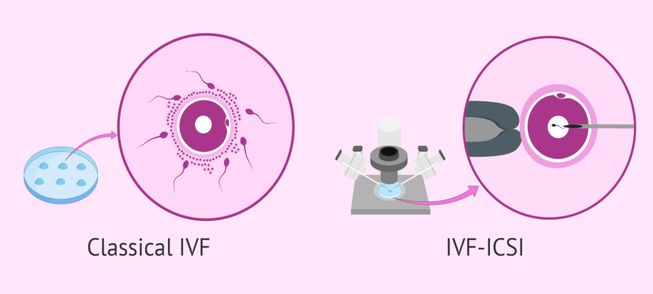 Types of IVF