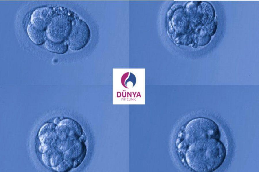 Embriyo Kalitesi Sınıflandırılması Dünya Tüp Bebek